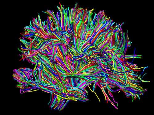 brain-wiring-map_MIT_white_matter  sc 1 st  Arcadia Education : wiring brain - yogabreezes.com